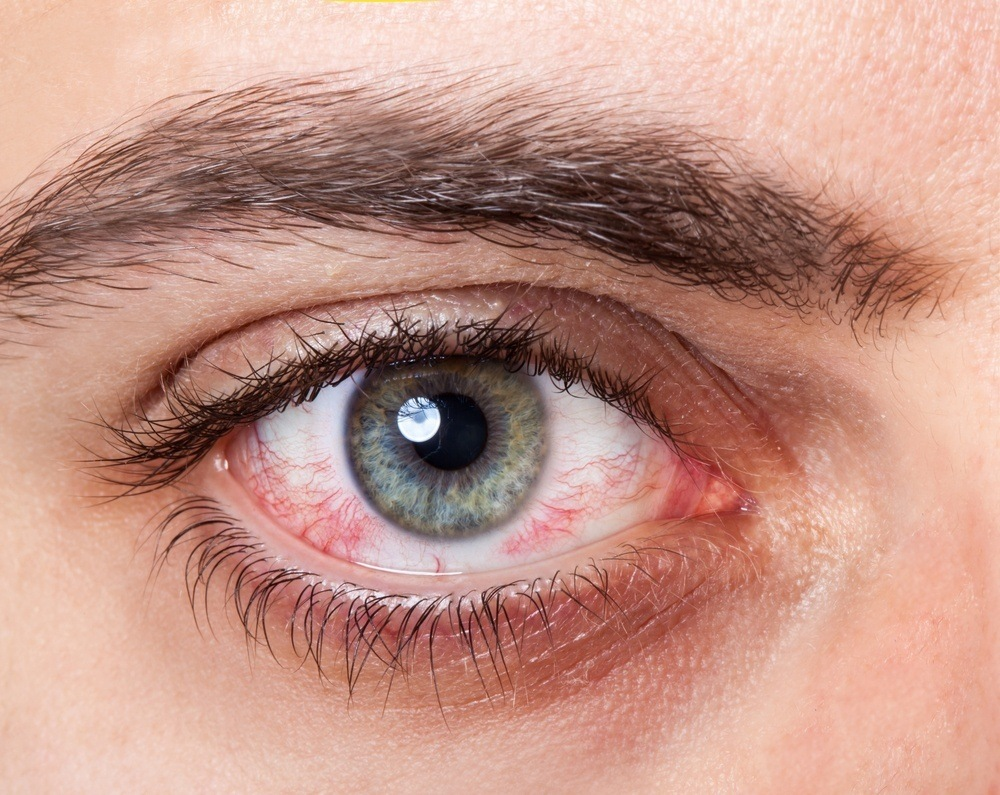 Eye Problems? Here's What It Says About Your Health 3