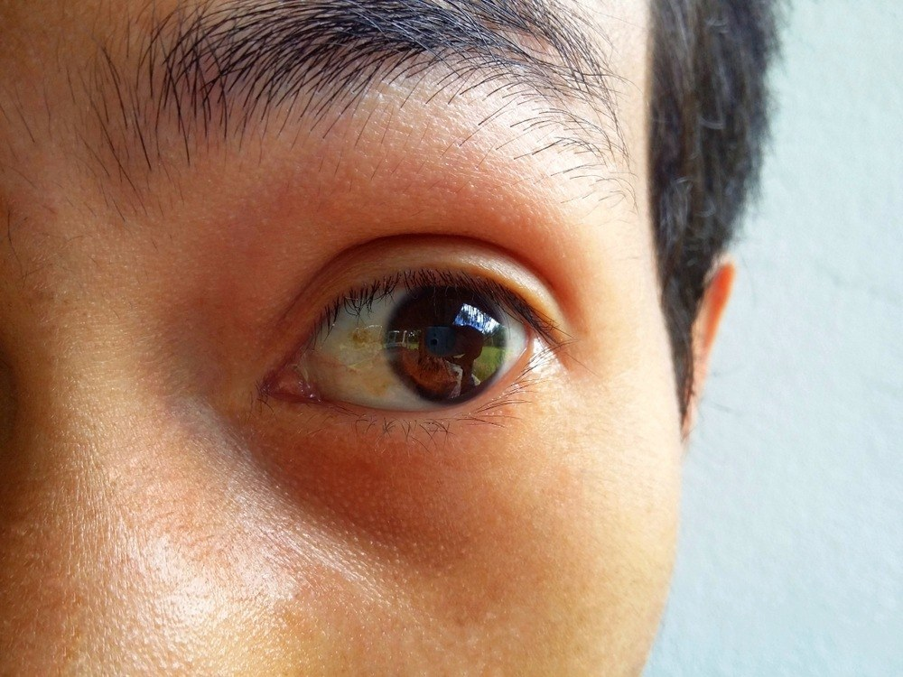 Eye Problems? Here's What It Says About Your Health 1