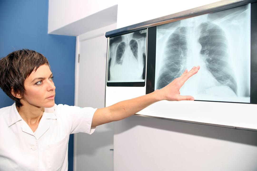 Sedentary women are at high risk for pulmonary embolism Wellness Captain