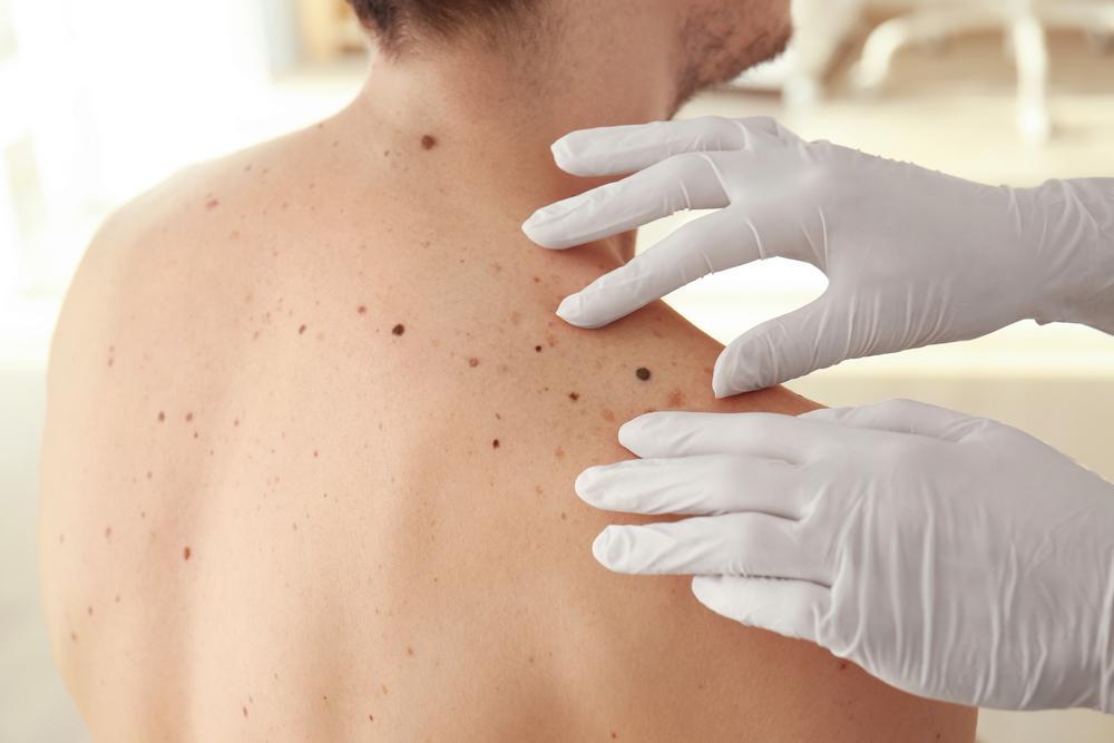 18 Symptoms of Dangerous Health Conditions Hiding in Plain Sight 1