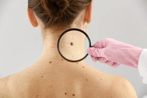 Moles – Causes, Warning Signs and Prevention