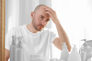 Are bald men more likely to get a severe form of COVID-19?