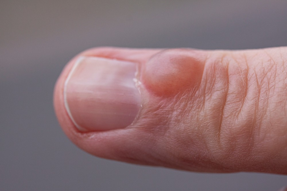9 Serious Health Problems Your Nails Might Warn You About 1