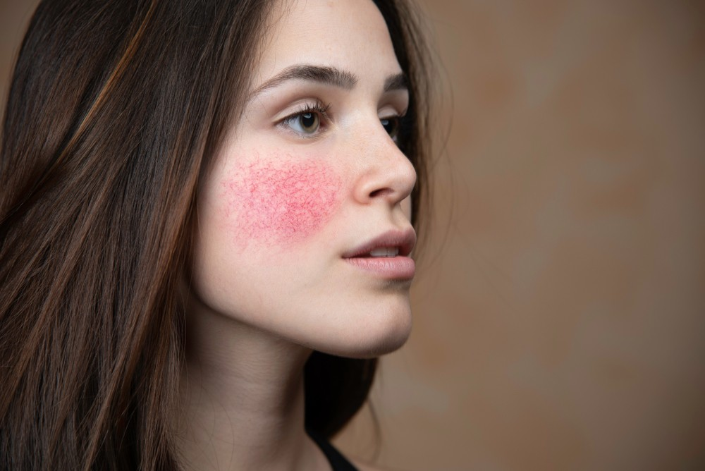 Noticed Any Bumps on Your Face? They May Signal These 5 Health Problems 6
